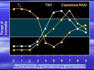 tabella-tiroiditi