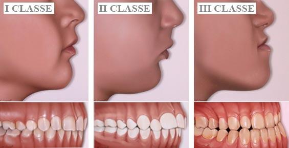 foto classi dentali