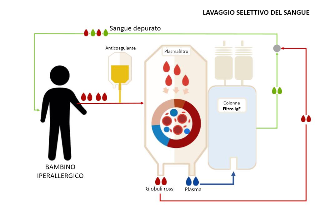 infografica-plasmaferesi-IgE