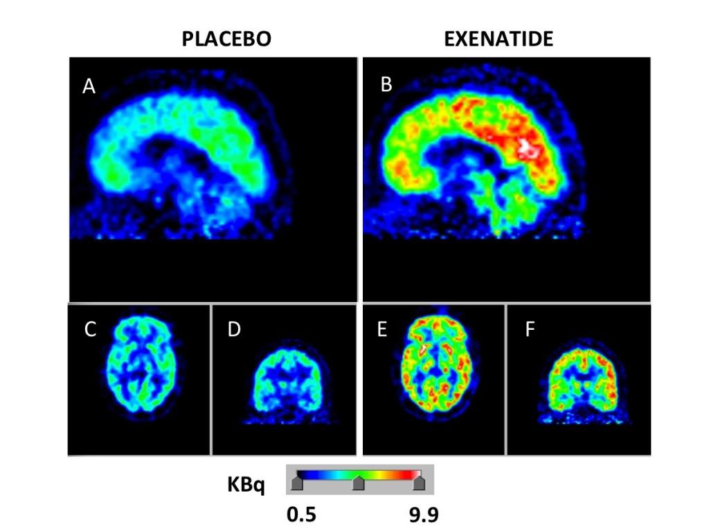 immagine-effetto-exenatide-cervello-cnr