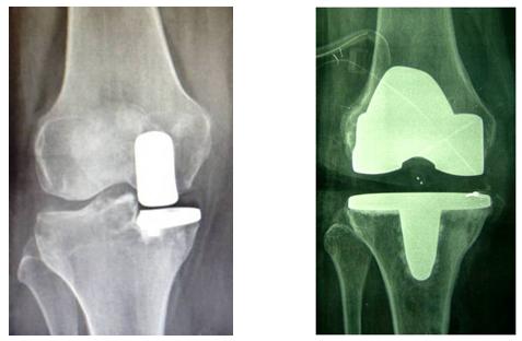 protesi-artrosi-ginocchio-camilleri-fig-1