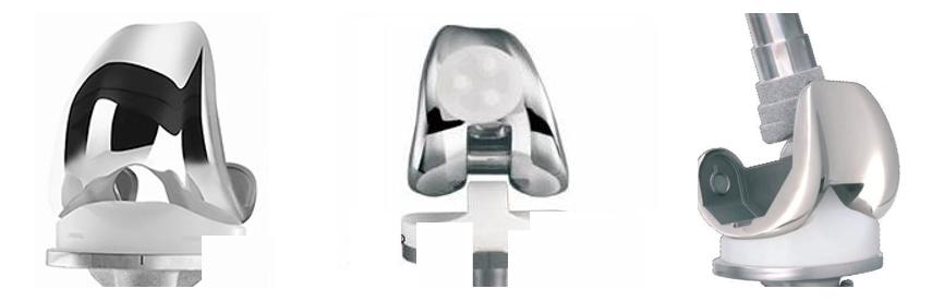 protesi-artrosi-ginocchio-camilleri-fig-3