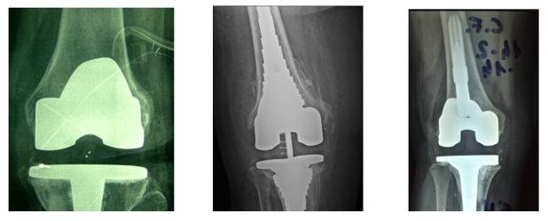 protesi-artrosi-ginocchio-camilleri-fig-4