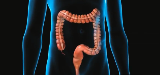 diverticolosi-colica-federico-messina