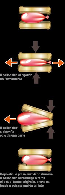 esempio-palloncino