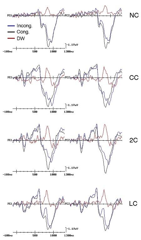 fig-2-conflitti-cerebrali-cnr