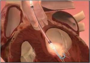 angioplastica-san-giovanni-bosco-torino-2