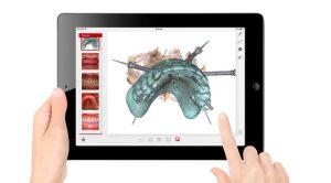 implantologia-dentale-virtuale-3d-mauriziano-1