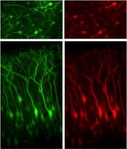 cloro-nel-cervello-cnr-2