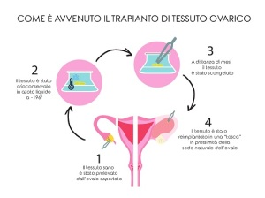 infografica-trapianto-tessuto-ovarico