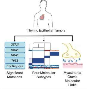 thymic-epithelial-tumors