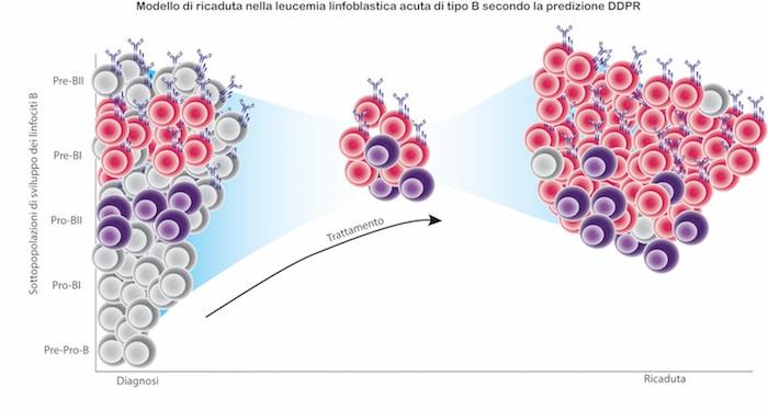 Leucemia: il rischio di recidive si può prevedere già dalla diagnosi