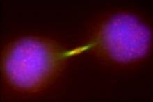 aurora-b-tumori-cnr