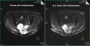 cnao-2018-trattamento-cordoma-del-sacro