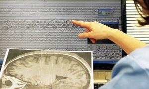 tracciato-epilessia-opbg