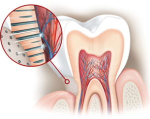 denti-sensibili-3
