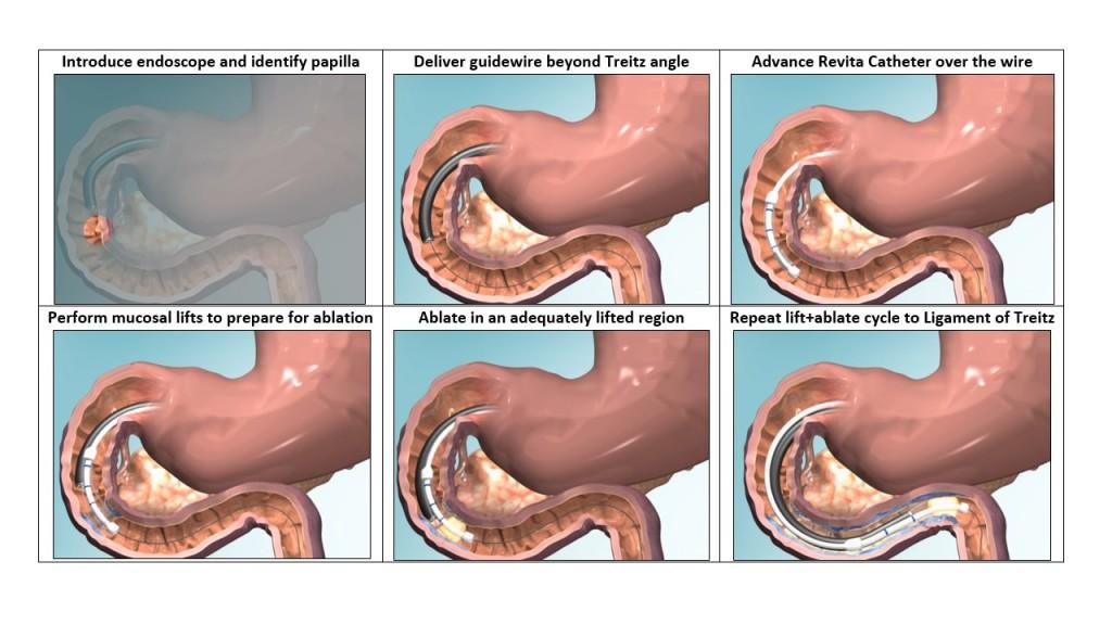revita-procedure-still2-gemelli