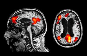 cervello-istituto-carlo-besta