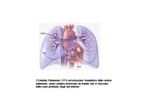 embolia-polmonare