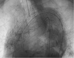 aneurisma-endoprotesi-3d-mauriziano-1