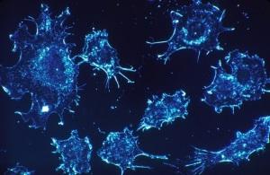 cellule-tumorali