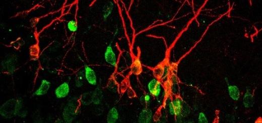 neuroni-immaturi-bonfanti-nico-uni-torino