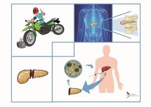 infografica-autotrapianto-isole-pancreatiche