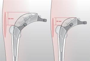 ior-protesi-florida