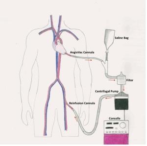 tecnica-angiovac