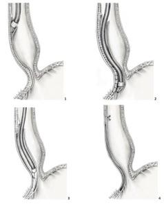 miotomia-esofago-aou-padova
