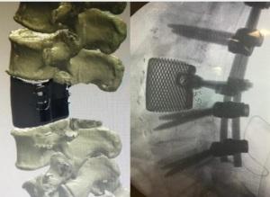 protesi-titanio-3d-aou-pisana