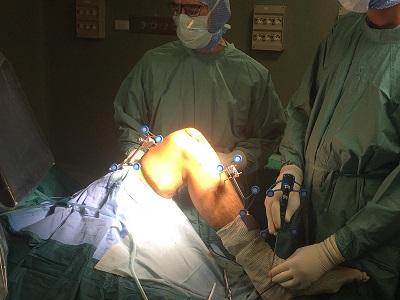 Artroprotesi del ginocchio: primo intervento di chirurgia robotica in  Campania - insalutenews.it